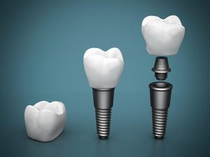 Dental Implants | Dentist Yeronga