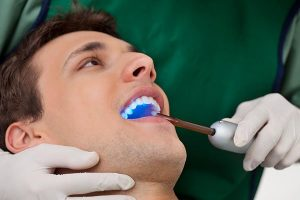Dental Sealants Yeronga