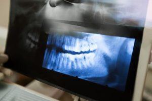 Diseases of the Jaw Yeronga