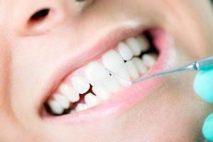 Gum Disease Treatment Yeronga