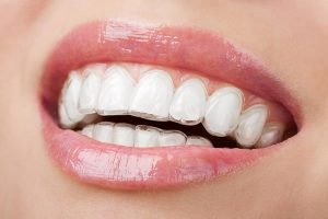 Invisalign | Dentist Yeronga