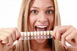dental veneers yeronga