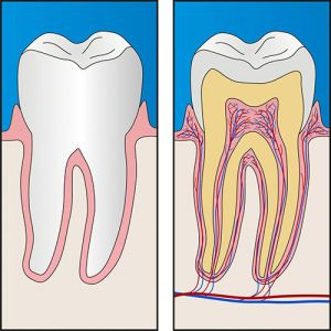 Root Canal Treatment Yeronga