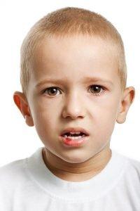 Soft Tissues Injury In The Mouth Emergency Yeronga