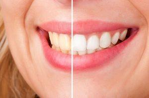 tooth whitening Yeronga