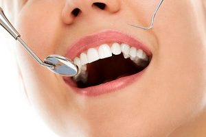 Tooth Fillings | Dentist Yeronga