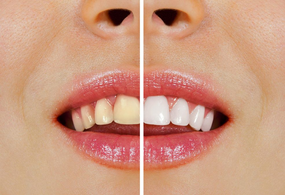 Ultimate Teeth Whitening Guide in Yeronga