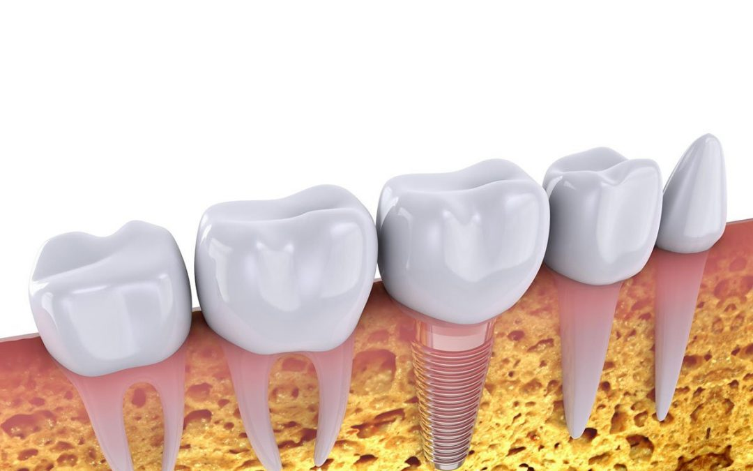 Ria Family Dental Tips: Should I Get Dental Implants If I Have A Missing Tooth?
