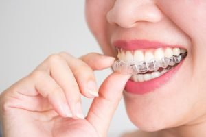 Does Invisalign Work Dentist Yeronga