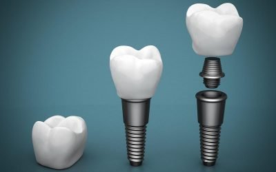 The Ultimate Guide to Dental Implants in Yeronga