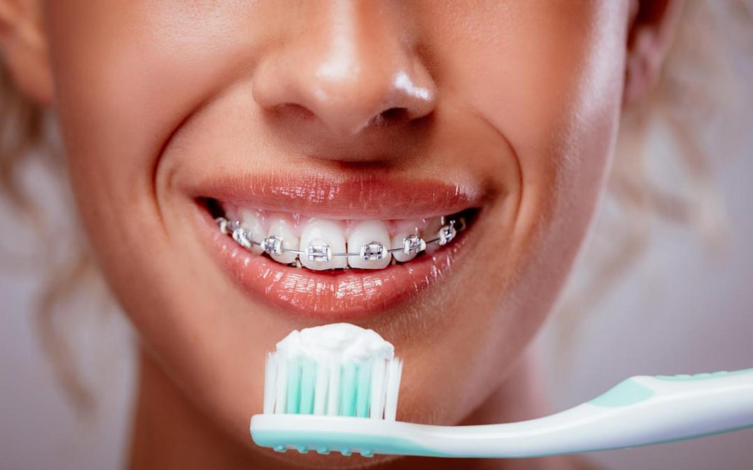 Yeronga Dentist Tips: How can I keep my teeth clean when wearing braces?