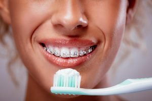 Yeronga Dentist Tips How can I keep my teeth clean when wearing braces