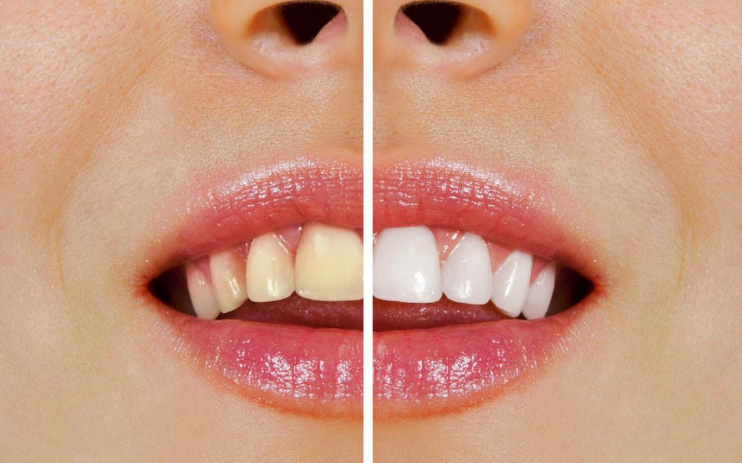 Over-the-Counter Whitening vs Whitening at Ria Family Dental