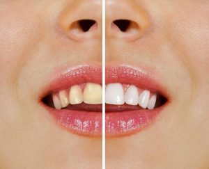 Over-the-Counter Whitening vs Whitening at Ria Family Dental Yeronga