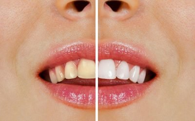 Over-the-Counter Whitening vs Whitening at Ria Family Dental