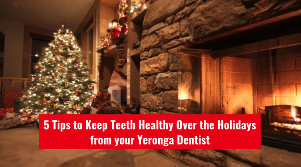 5 Tips to Keep Teeth Healthy Over the Holidays from your Yeronga Dentist